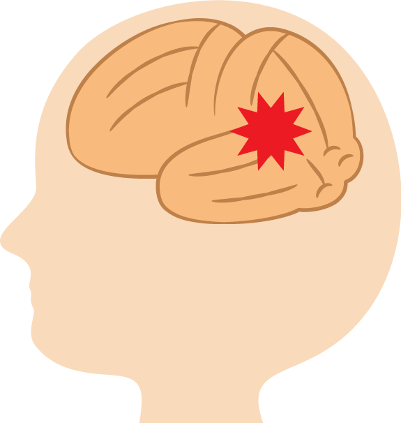 パニック障害の脳イメージ