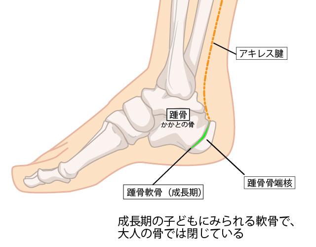 踵骨のイラスト